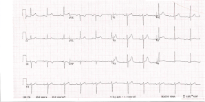 ECG post EMDutch