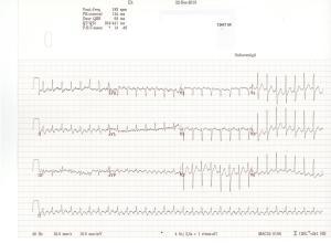 ECG AFl 2 op 1 180 per minuut.1